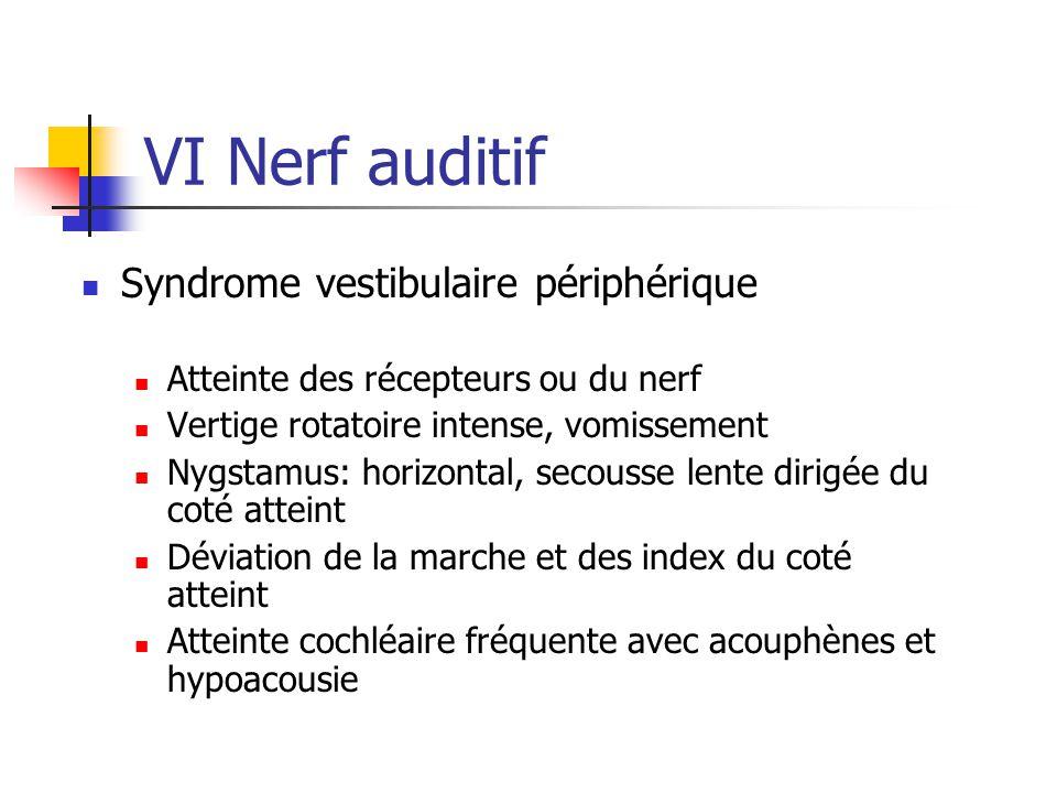 VI Nerf auditif Syndrome vestibulaire périphérique