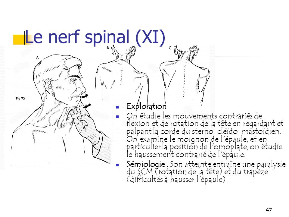 Le nerf spinal (XI) Exploration