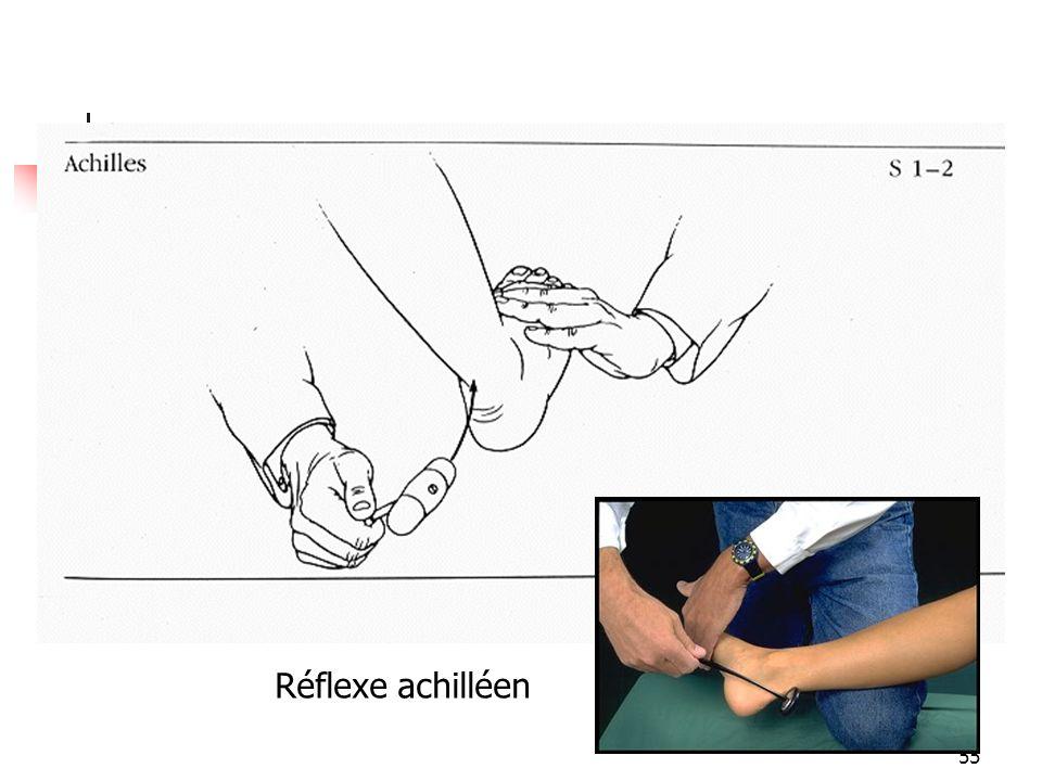 Réflexe achilléen