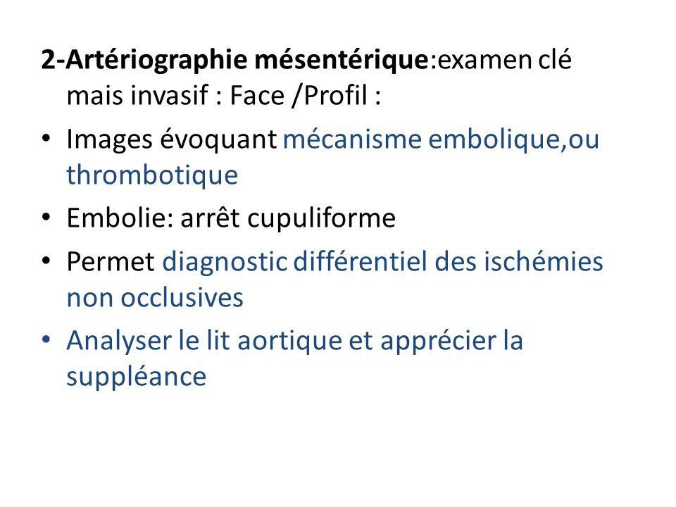 2-Artériographie mésentérique:examen clé mais invasif : Face /Profil :