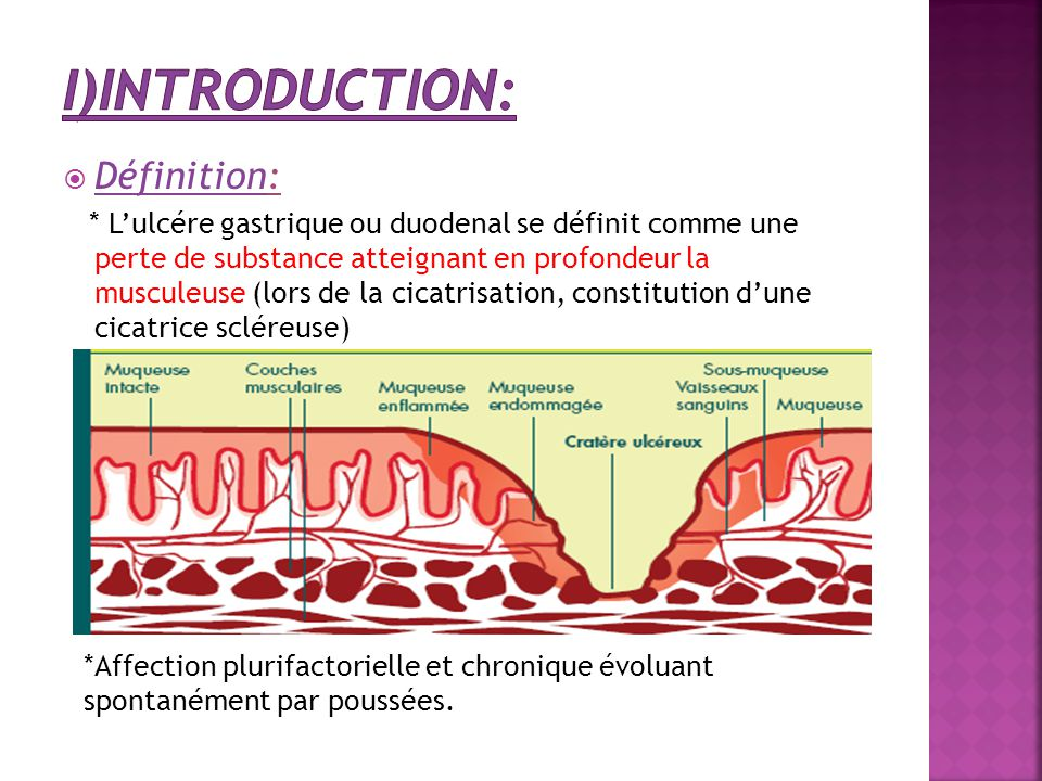 I)Introduction: Définition: