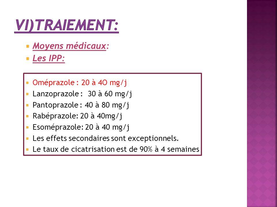 vi)Traiement: Moyens médicaux: Les IPP: Oméprazole : 20 à 4O mg/j