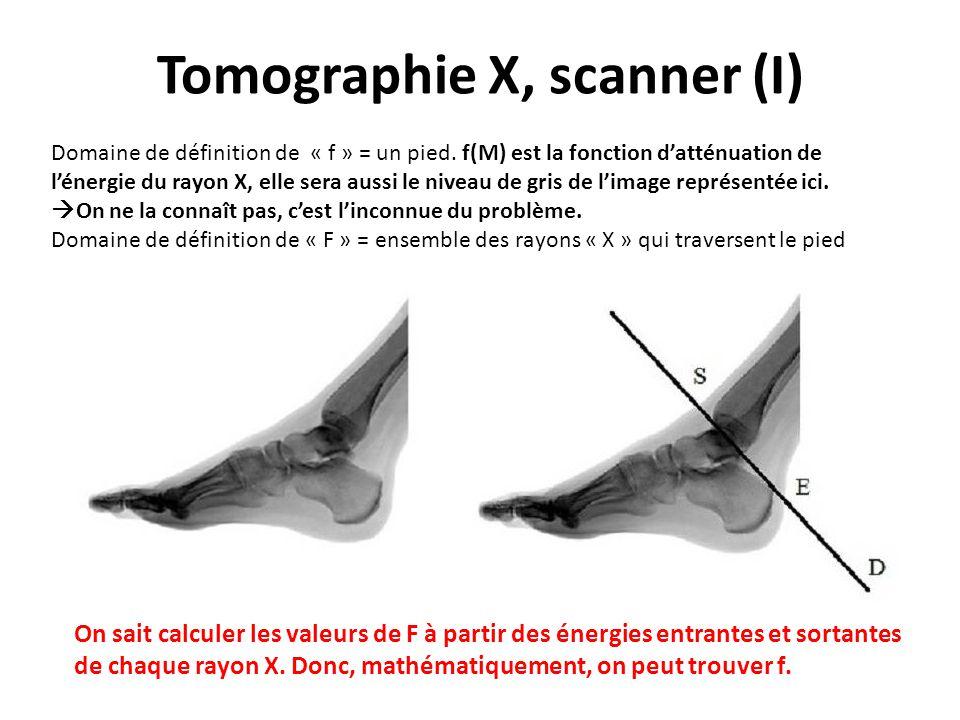 Tomographie X, scanner (I)