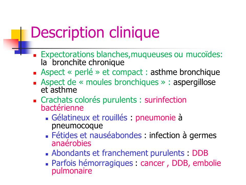 Description clinique Expectorations blanches,muqueuses ou mucoïdes: la bronchite chronique. Aspect « perlé » et compact : asthme bronchique.