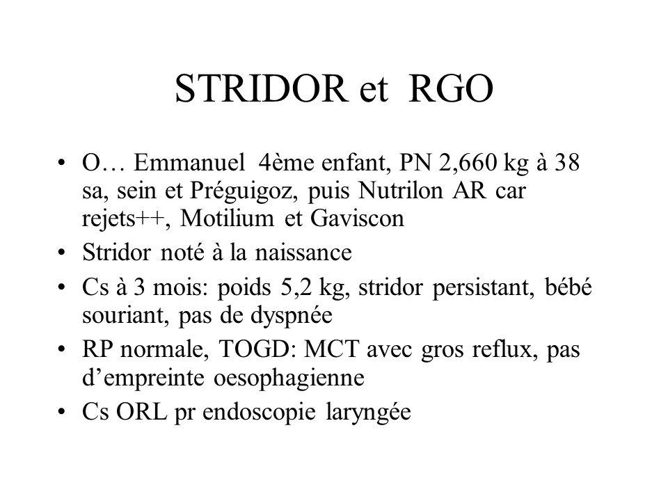 STRIDOR et RGO O… Emmanuel 4ème enfant, PN 2,660 kg à 38 sa, sein et Préguigoz, puis Nutrilon AR car rejets++, Motilium et Gaviscon.