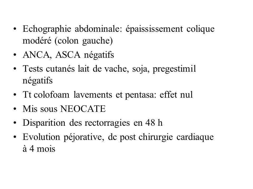 Echographie abdominale: épaississement colique modéré (colon gauche)