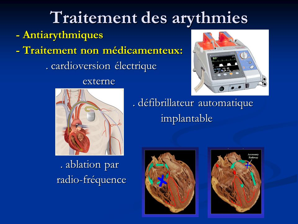 Traitement anti arythmique ppt t l charger - Ablation chambre implantable ...