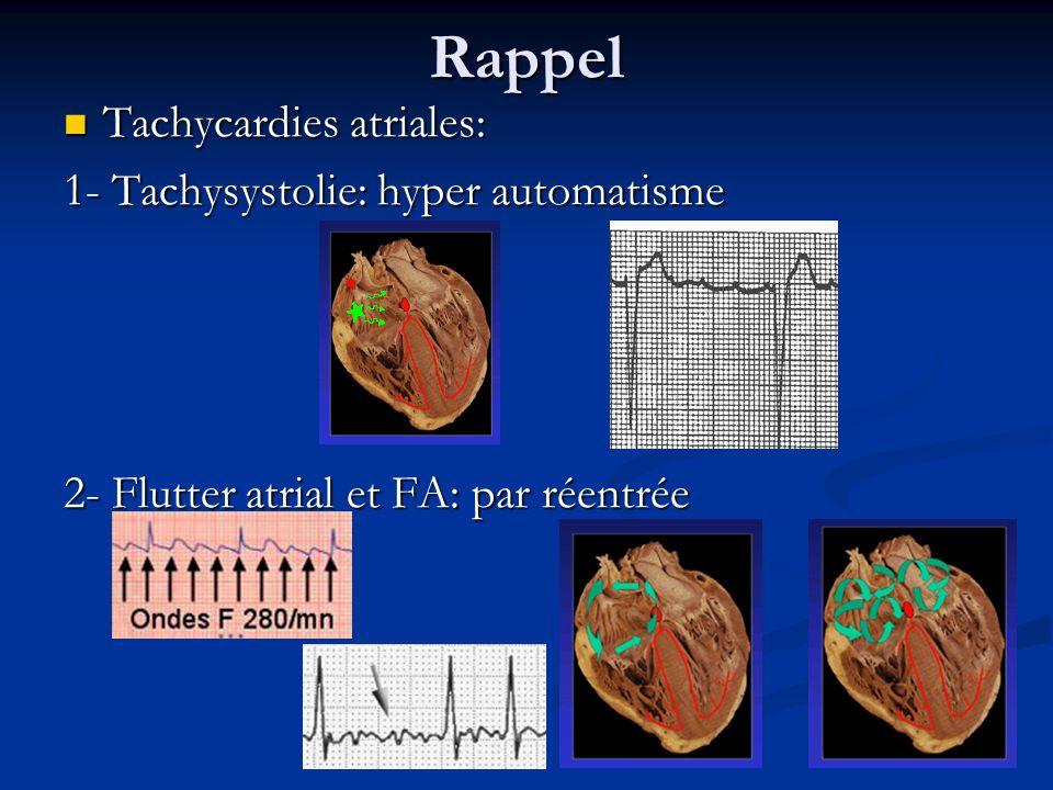 Rappel Tachycardies atriales: 1- Tachysystolie: hyper automatisme