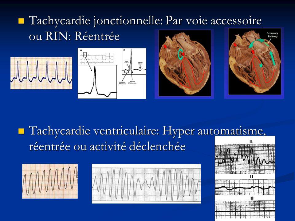 Tachycardie jonctionnelle: Par voie accessoire ou RIN: Réentrée