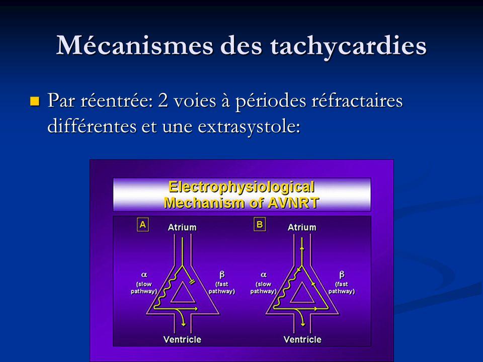 Mécanismes des tachycardies