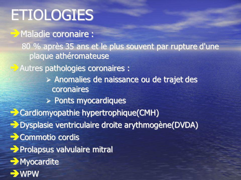 ETIOLOGIES Maladie coronaire :