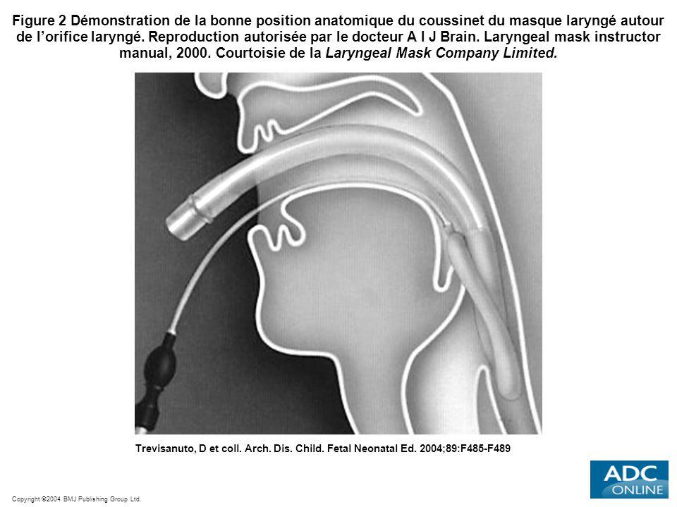Figure 2 Démonstration de la bonne position anatomique du coussinet du masque laryngé autour de l'orifice laryngé. Reproduction autorisée par le docteur A I J Brain. Laryngeal mask instructor manual, 2000. Courtoisie de la Laryngeal Mask Company Limited.