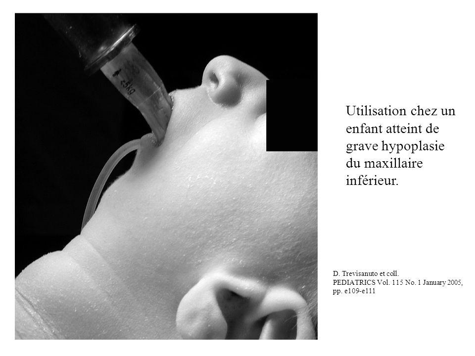 Utilisation chez un enfant atteint de grave hypoplasie du maxillaire inférieur.