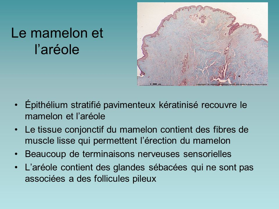 Le mamelon et l'aréole Épithélium stratifié pavimenteux kératinisé recouvre le mamelon et l'aréole.
