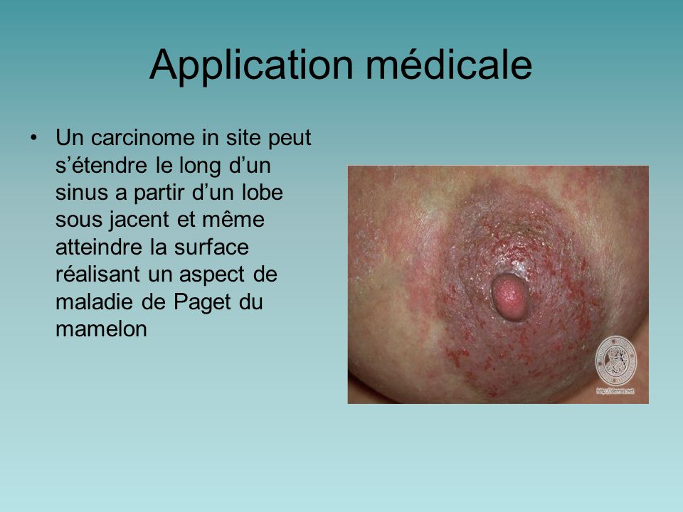 Application médicale