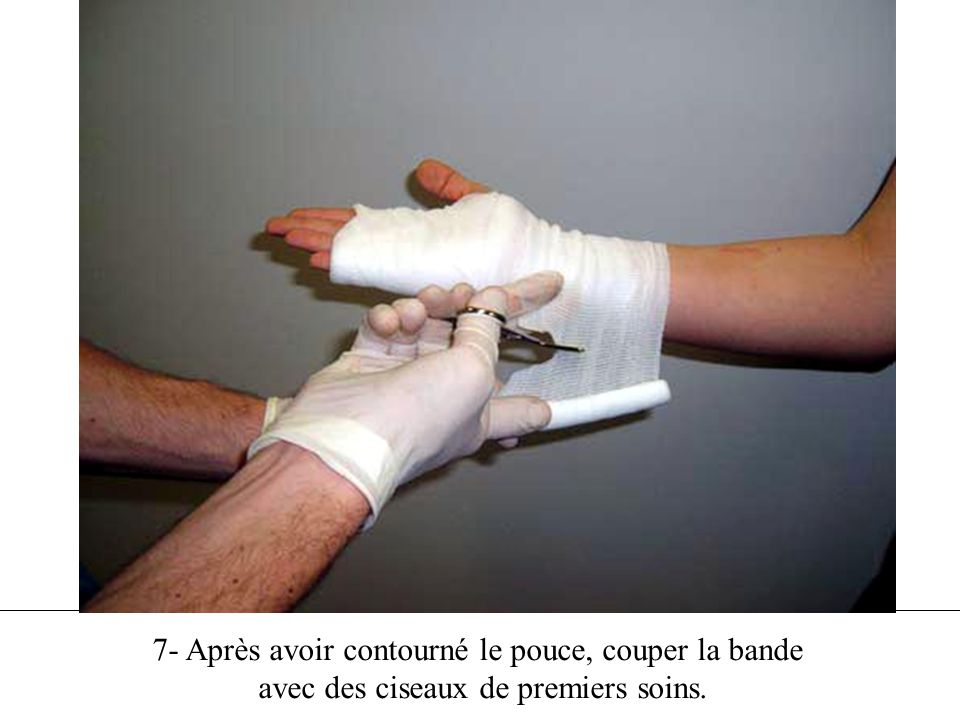 7- Après avoir contourné le pouce, couper la bande