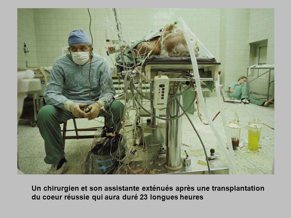 Un chirurgien et son assistante exténués après une transplantation du coeur réussie qui aura duré 23 longues heures