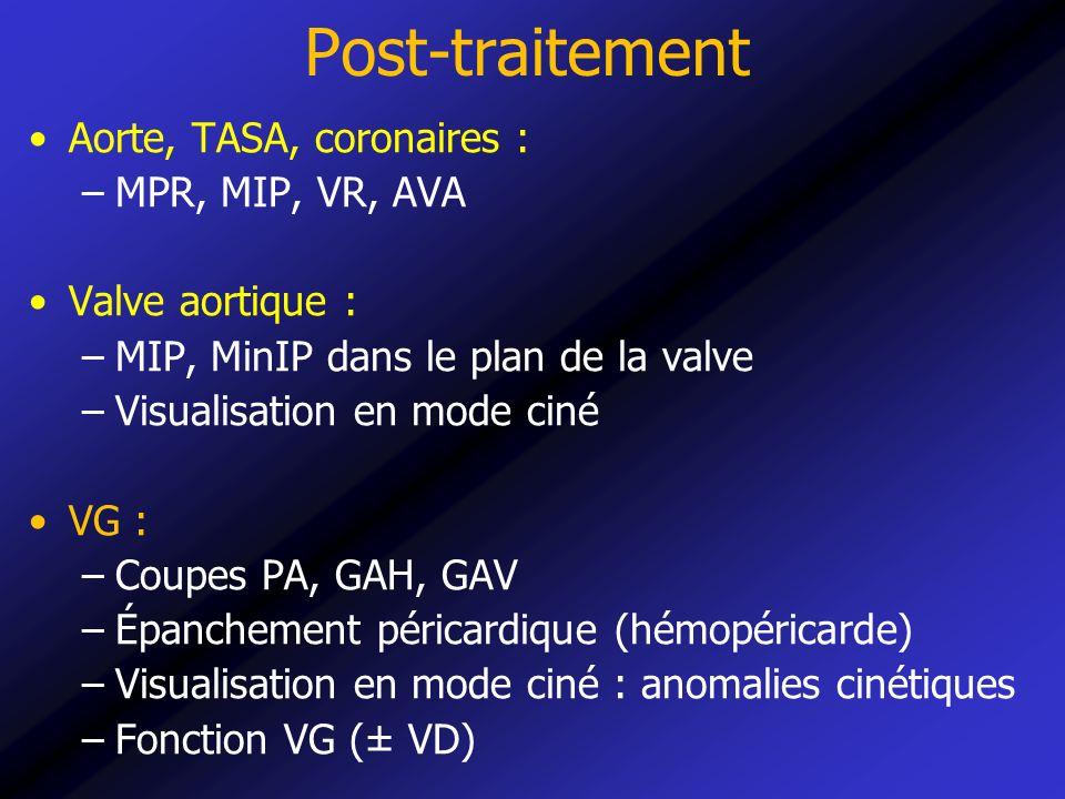 Post-traitement Aorte, TASA, coronaires : MPR, MIP, VR, AVA