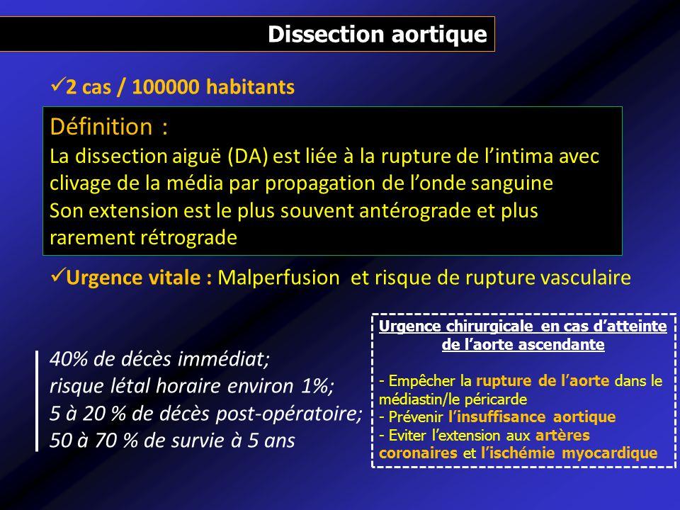 Urgence chirurgicale en cas d'atteinte de l'aorte ascendante