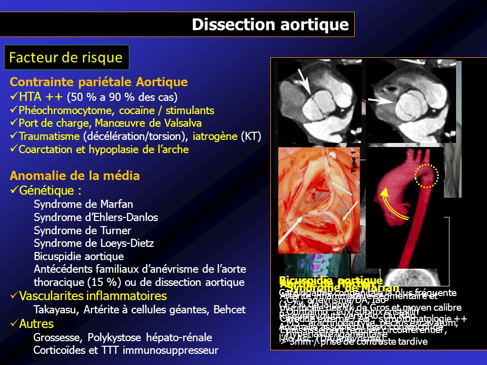 imagerie volumique de l u2019aorte thoracique