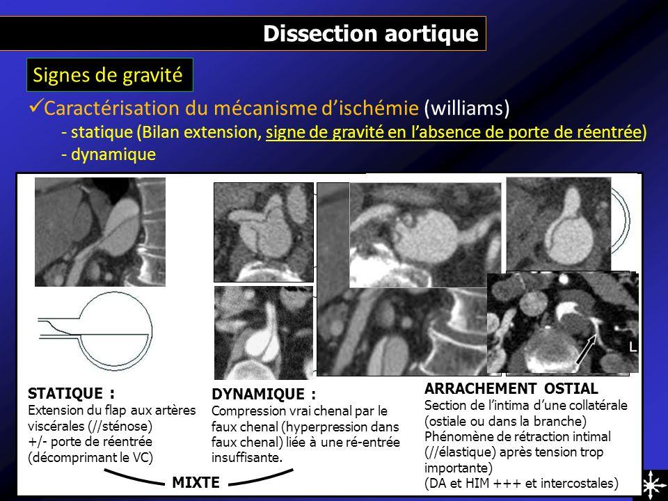 Caractérisation du mécanisme d'ischémie (williams)
