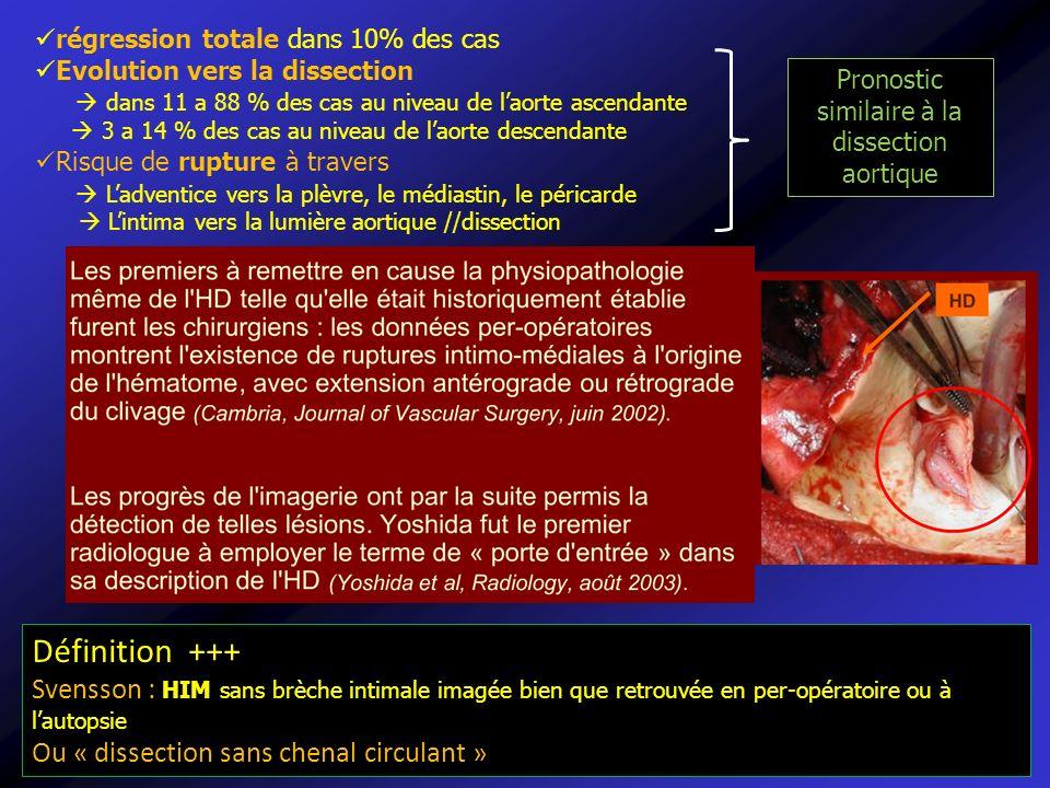 Pronostic similaire à la dissection aortique