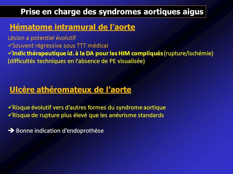 Prise en charge des syndromes aortiques aigus