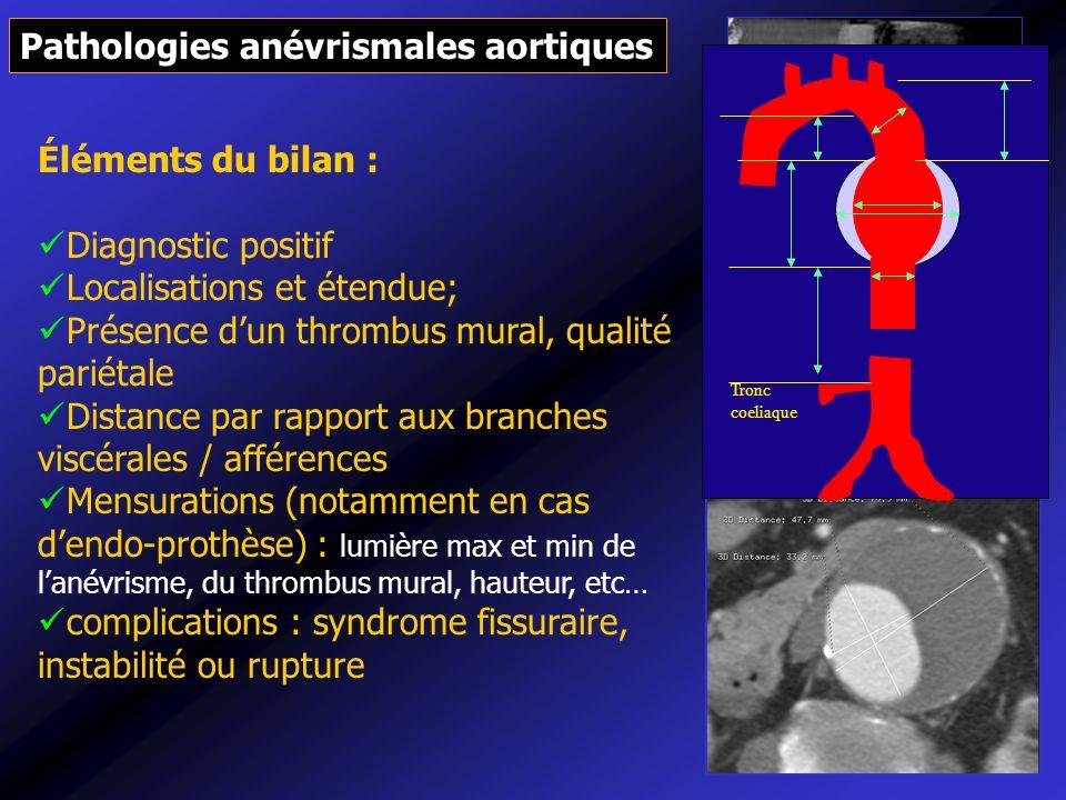 Pathologies anévrismales aortiques