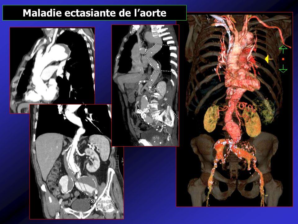 Maladie ectasiante de l'aorte