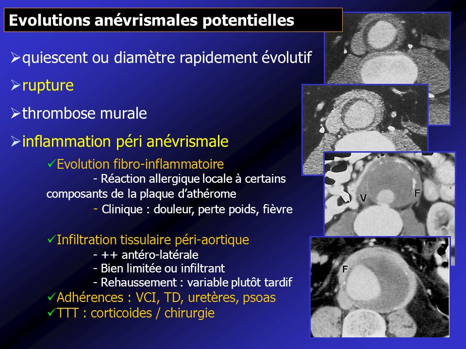 Evolutions anévrismales potentielles
