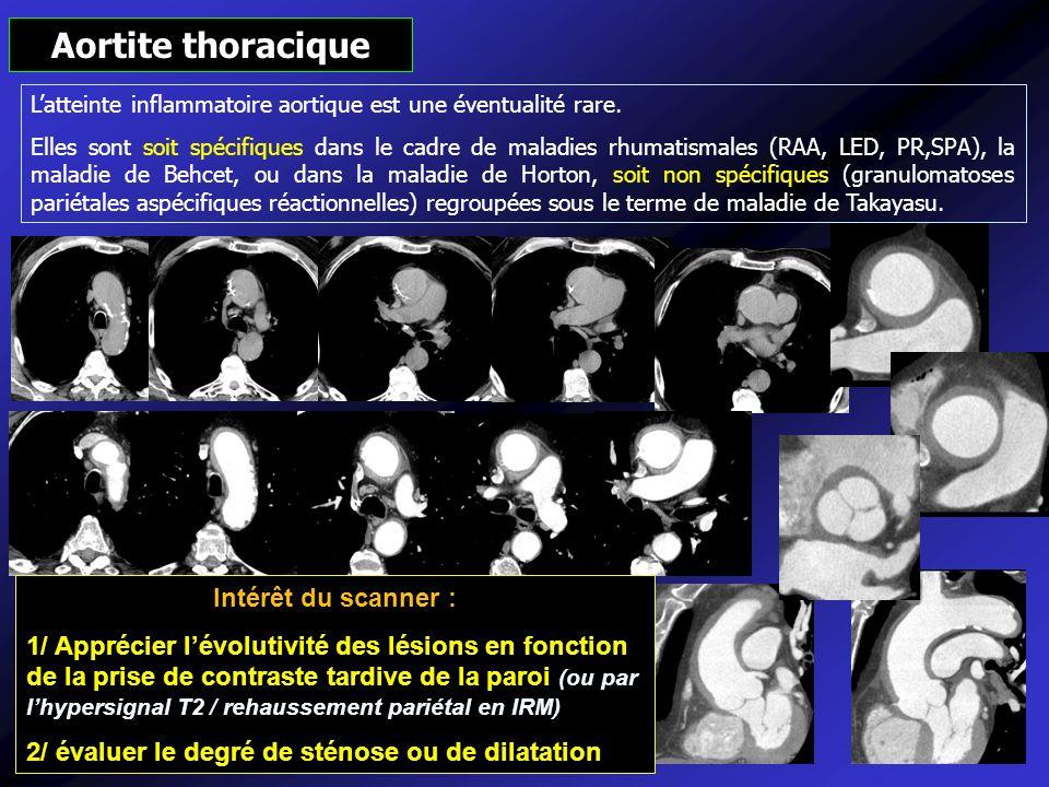 Aortite thoracique Intérêt du scanner :