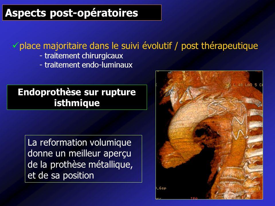 Endoprothèse sur rupture isthmique