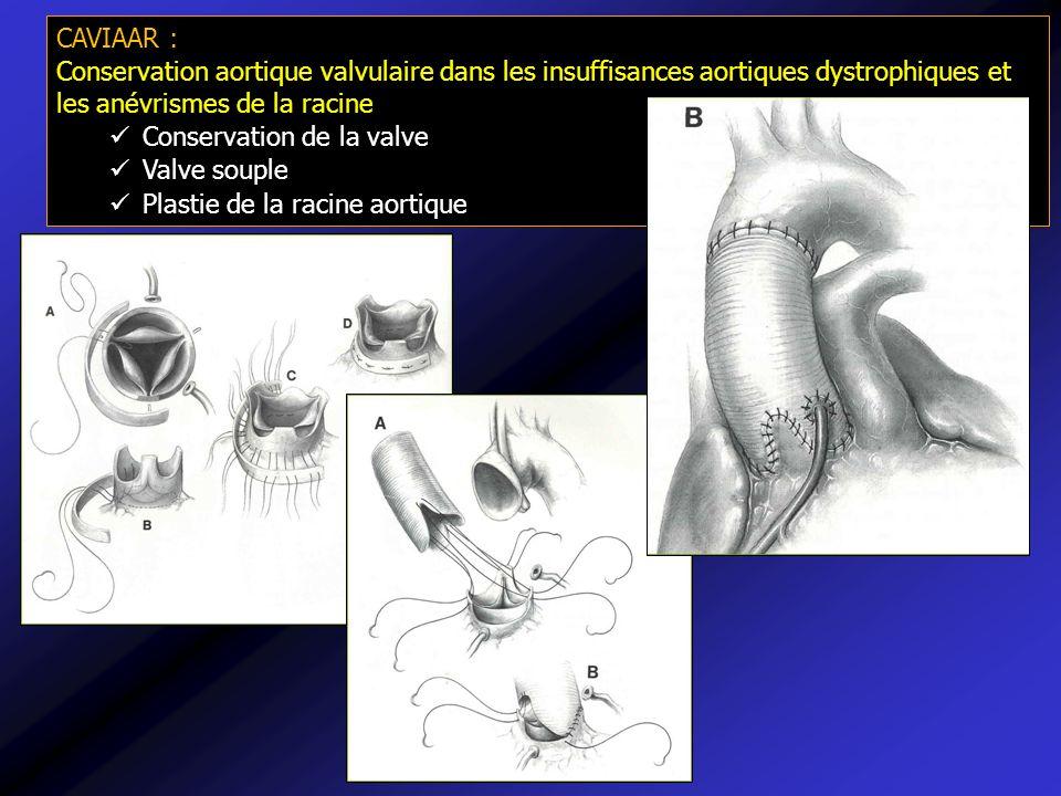 CAVIAAR : Conservation aortique valvulaire dans les insuffisances aortiques dystrophiques et les anévrismes de la racine.
