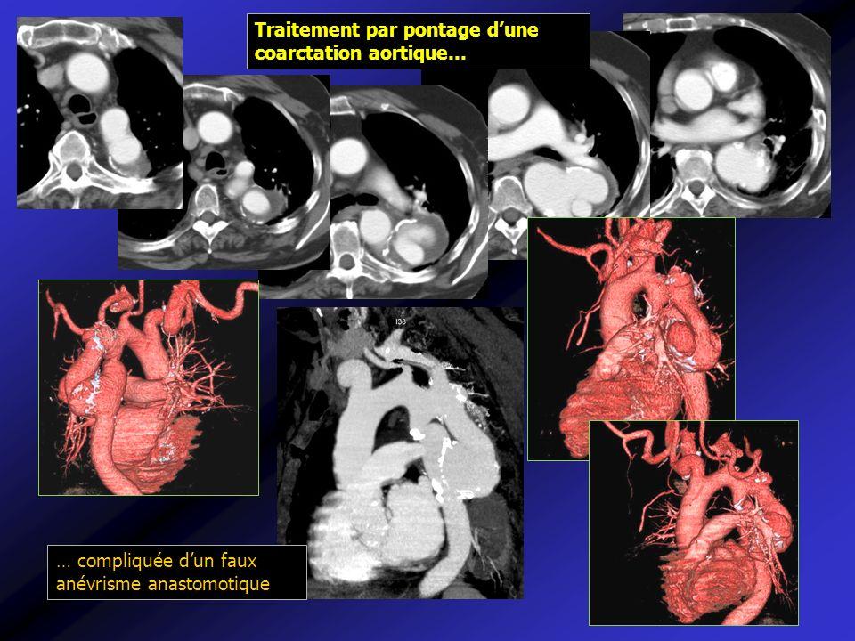 Traitement par pontage d'une coarctation aortique…