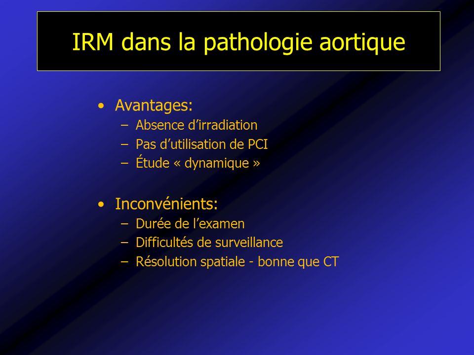 IRM dans la pathologie aortique
