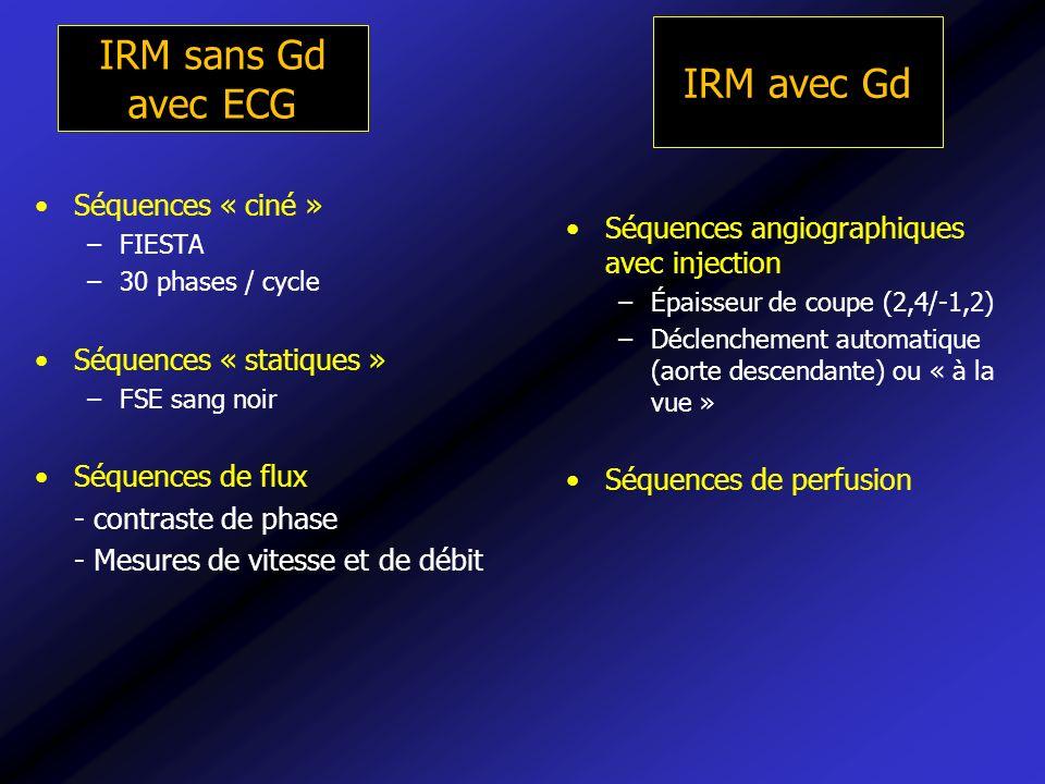IRM sans Gd avec ECG IRM avec Gd Séquences « ciné »