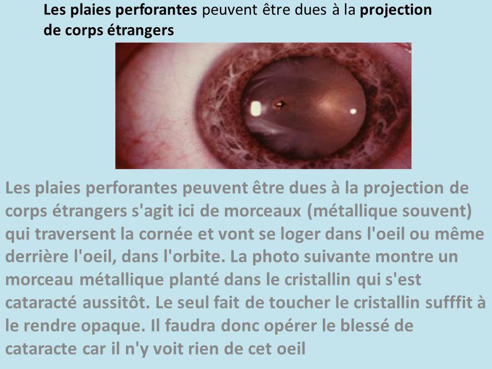 Les plaies perforantes peuvent être dues à la projection de corps étrangers
