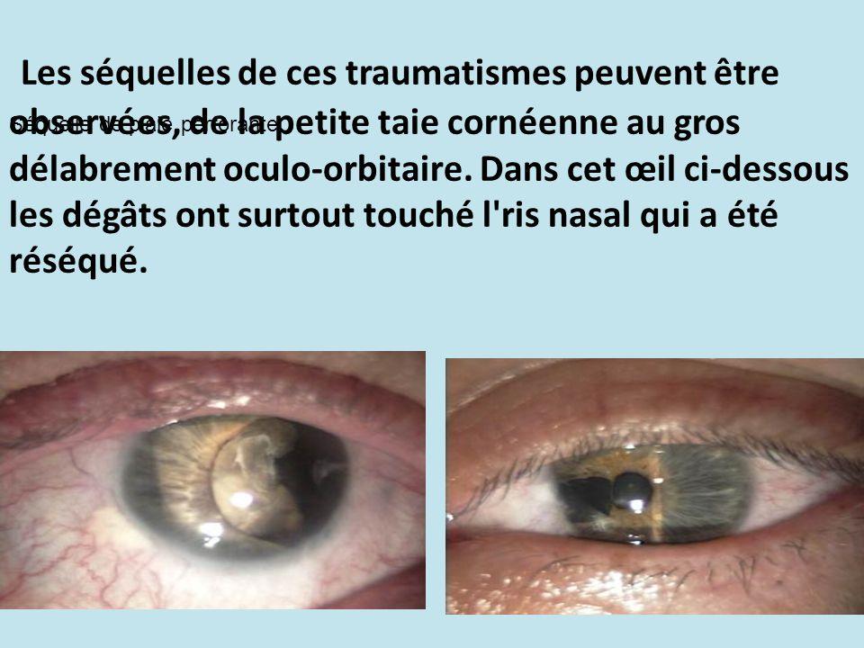 Les séquelles de ces traumatismes peuvent être observées, de la petite taie cornéenne au gros délabrement oculo-orbitaire. Dans cet œil ci-dessous les dégâts ont surtout touché l ris nasal qui a été réséqué.