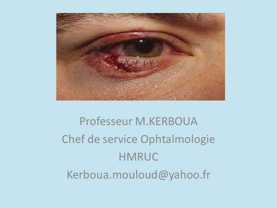 Chef de service Ophtalmologie