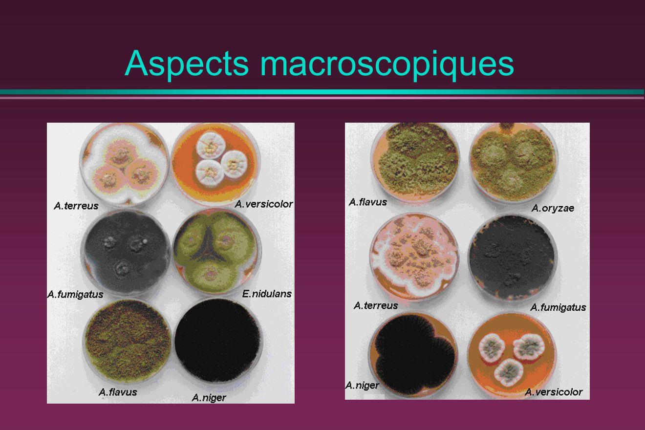 Aspects macroscopiques