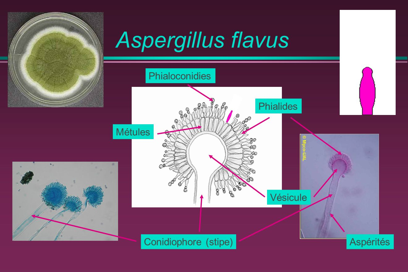 Aspergillus flavus Phialoconidies Phialides Métules Vésicule