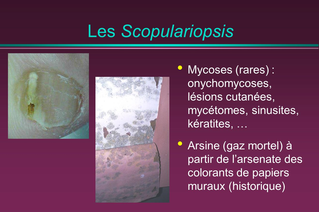 Les Scopulariopsis Mycoses (rares) : onychomycoses, lésions cutanées, mycétomes, sinusites, kératites, …