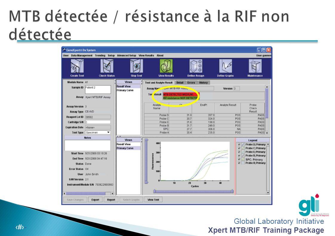 MTB détectée / résistance à la RIF non détectée