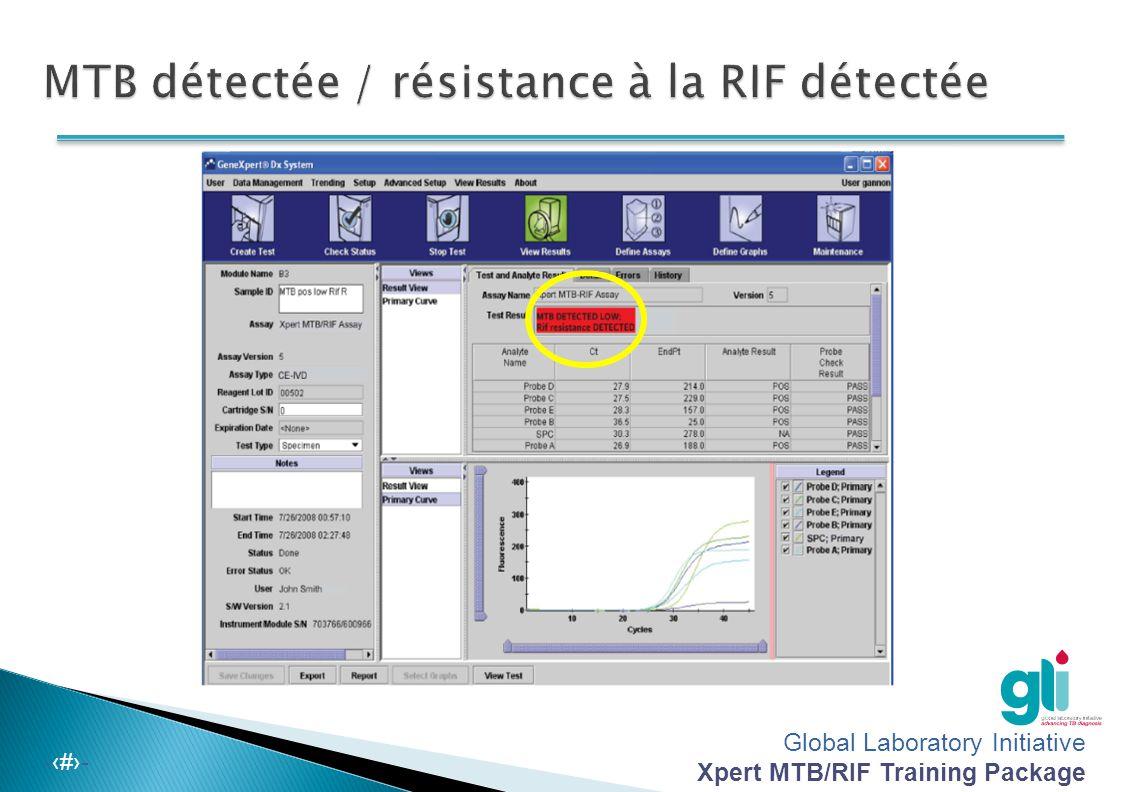 MTB détectée / résistance à la RIF détectée