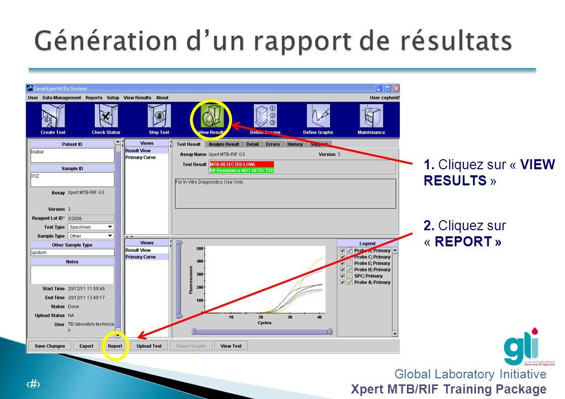 Génération d'un rapport de résultats