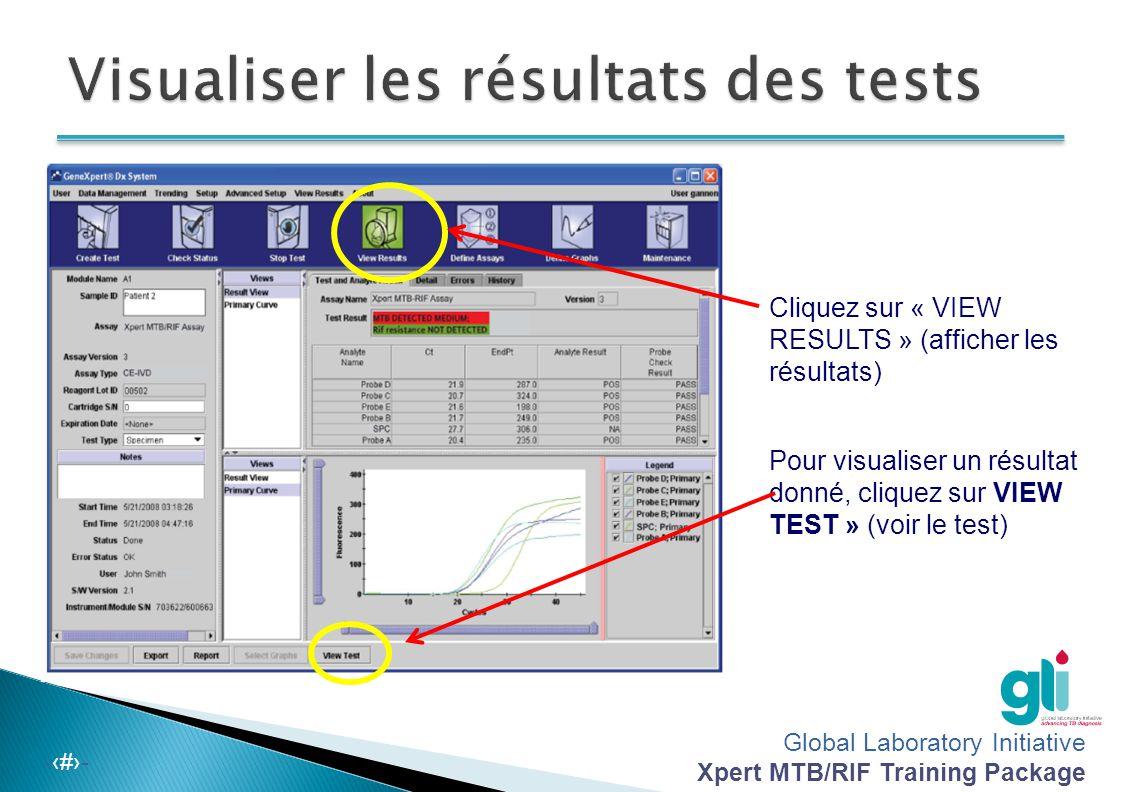 Visualiser les résultats des tests