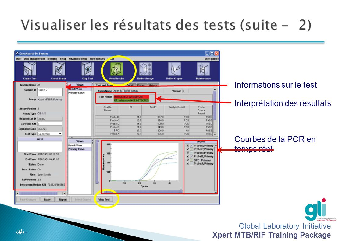 Visualiser les résultats des tests (suite - 2)
