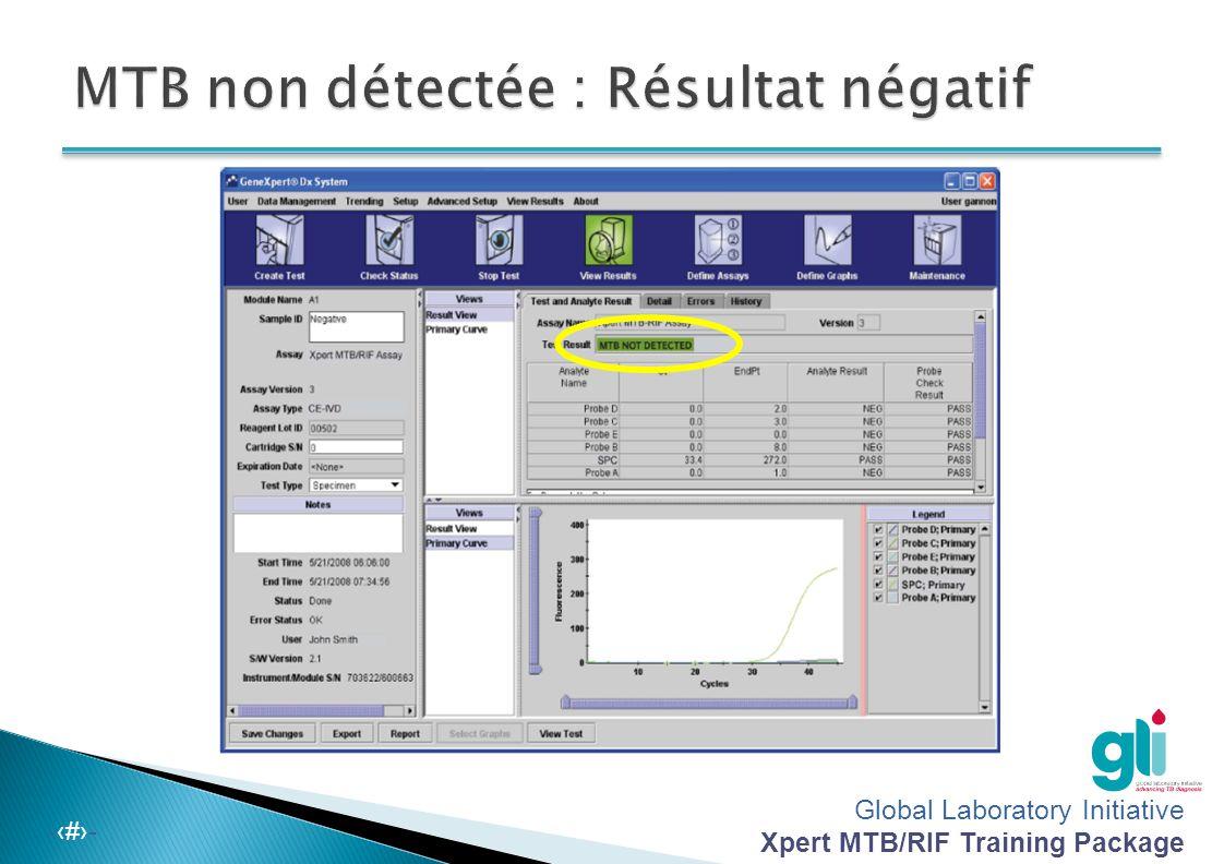 MTB non détectée : Résultat négatif