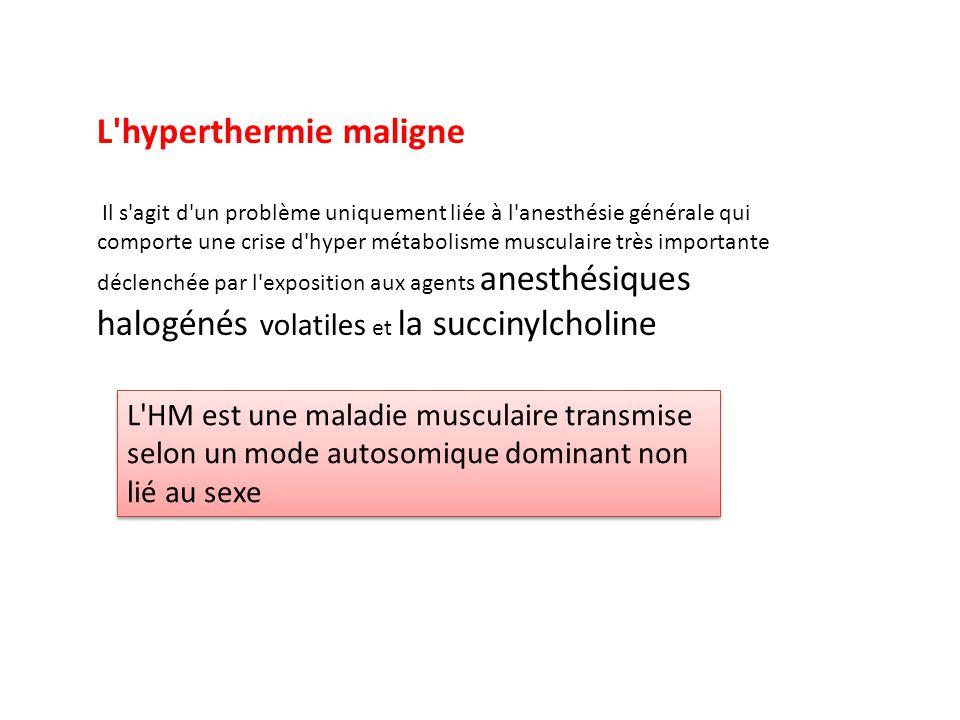 L hyperthermie maligne