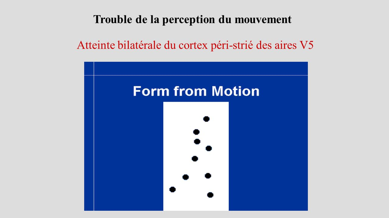 Trouble de la perception du mouvement